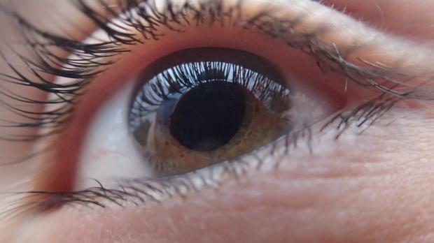 glaucoma-piocture-1