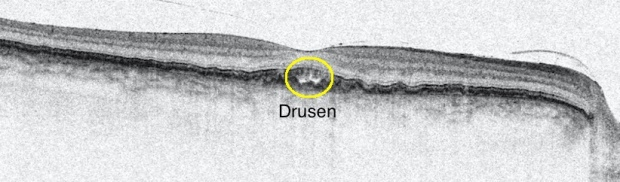 md-drusen-in-my-right-eye