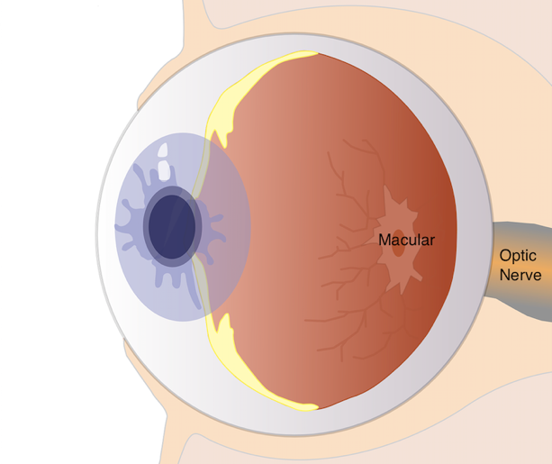 md-eyeball-diagram